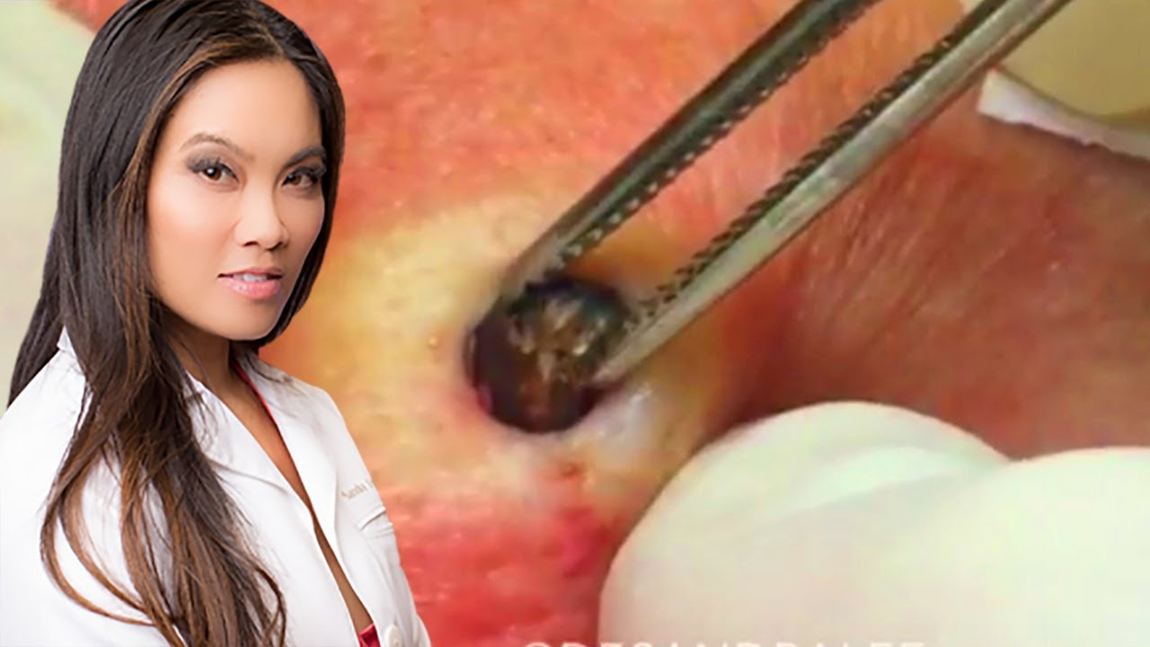 Dr  Pimple Popper says this was the grossest thing to happen to her
