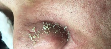 Blackheads on nose removal