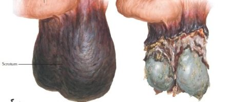 Fournier's Gangrene of the Scrotum