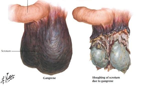 Fournier's Gangrene of the Scrotum