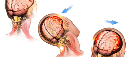 Concussion: SYMPTOMS