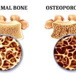 Osteoporosis: Risk Factors, Diagnosis, and Therapy