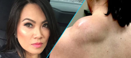 Dr. Pimple Popper's Holiday