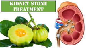 Kidney Stones Treatment