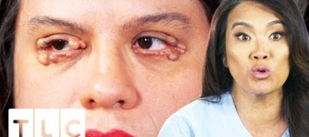 Dr. Lee Removes Numerous Cysts From Woman's Eyelids