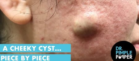 Old cyst on cheeks