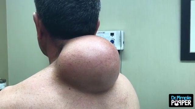 Massive pimple popper