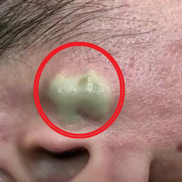 Dr Pimple Popper Drains A Huge Cyst