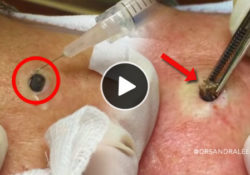 giant-blackhead-removed