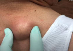 Cyst on Back