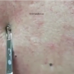 biggest back blackheads
