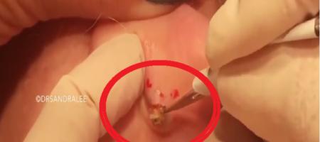 blackhead on ear removal